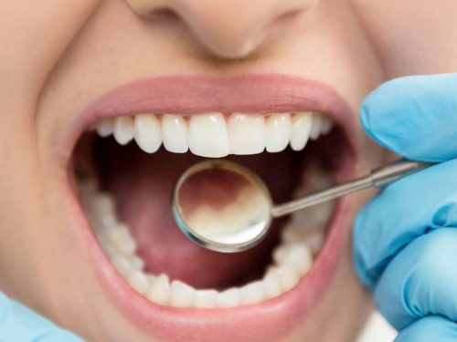 Reasons to consider tooth cosmetic procedures for your teeth